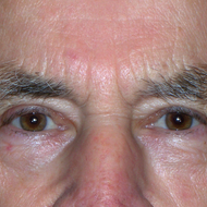 Blepharoplasty (Upper) 1