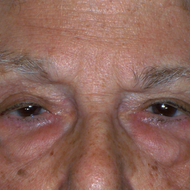 Blepharoplasty (Lower)
