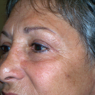 Blepharoplasty (Upper) side