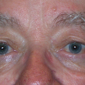 Ptosis/Droopy Eyelids